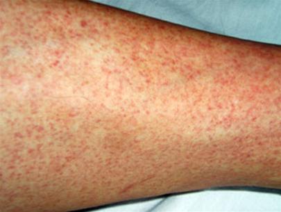 Phân biệt sởi và các bệnh sốt phát ban khác 1