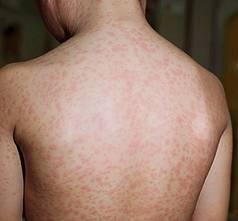 Bệnh sốt phát ban là gì? 1