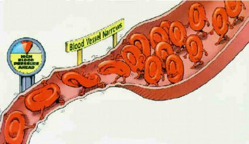Cách phòng ngừa chứng cao huyết áp