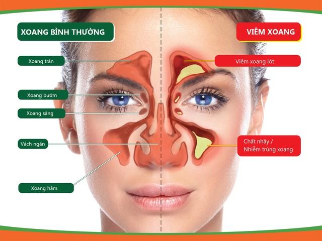 Nỗi khổ của người bệnh viêm mũi, viêm xoang dị ứng 1