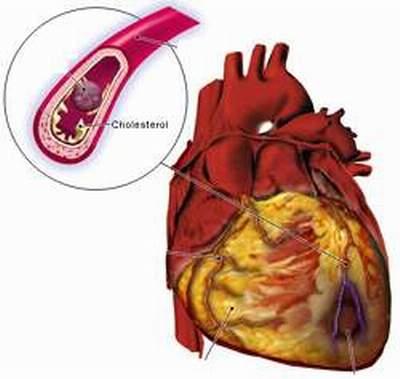 Điều trị và phòng bệnh nhồi máu cơ tim cấp 1
