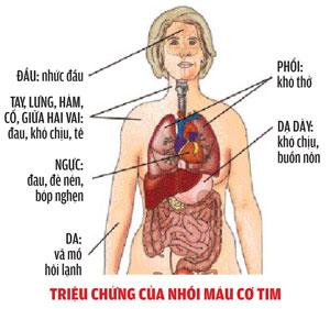 Một số dấu hiệu cảnh báo bệnh nhồi máu cơ tim 1