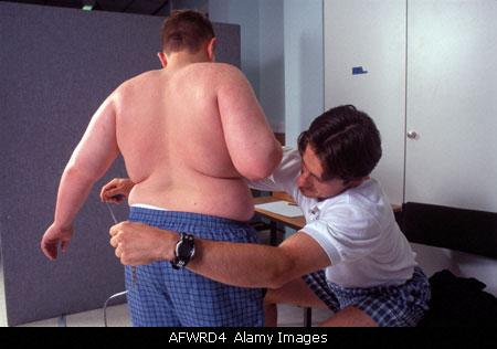 Làm thế nào để điều trị bệnh béo phì? 1