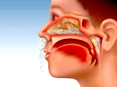 Nguyên nhân viêm đa xoang và cách điều trị 1