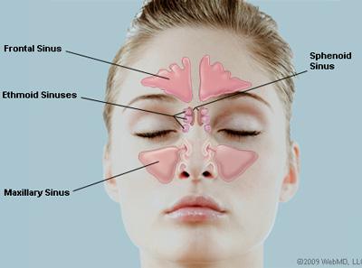 Viêm xoang mũi cấp tính - Nguyên nhân và biến chứng 1