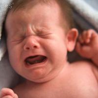 Phân biệt sốt phát ban và sởi ở trẻ như thế nào? 1