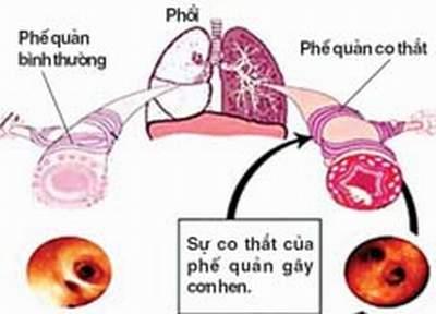 Dấu hiệu nhận biết bệnh hen tim 1