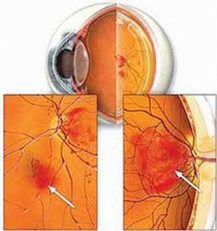 Bệnh đái tháo đường và những nguy cơ về mắt