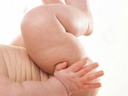 Chế độ dinh dưỡng cho trẻ thừa cân 1