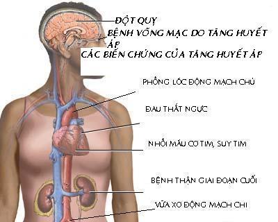 Các triệu chứng của bệnh động mạch vành