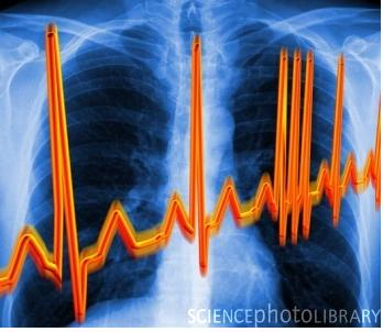 Các xét nghiệm và chẩn đoán nhịp tim nhanh 1