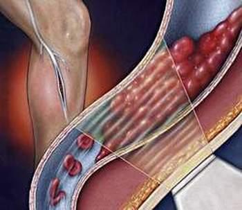 Viêm tắc động mạch - Chớ xem thường 1