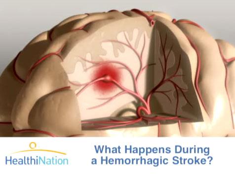 Bệnh tai biến mạch máu não và cách phòng ngừa