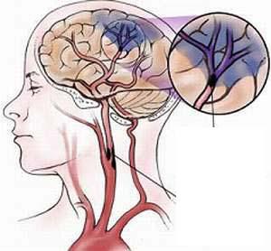 Đột quỵ não có thể phòng tránh được! 1