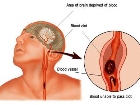 Phòng ngừa bệnh rối loạn tuần hoàn não 1