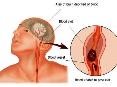 Phòng ngừa tai biến mạch máu não ở người cao huyết áp   1