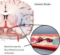 Phồng động mạch não 1