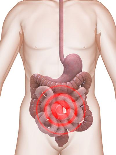 Vi khuẩn trong ruột già – Thủ phạm cản trở nỗ lực giảm cân