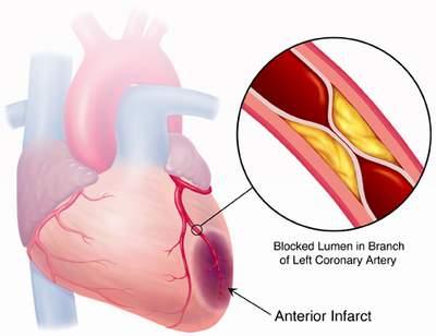 Nguy cơ nhồi máu cơ tim do tăng cholesterol 1