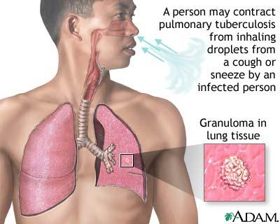 Bệnh viêm màng phổi 1