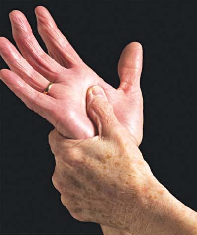 Hiện tượng đau khớp ngón tay - Dấu hiệu bệnh gì? 1