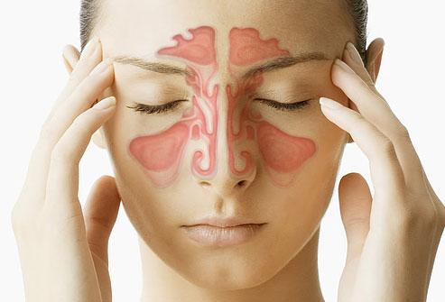 Viêm xoang có ảnh hưởng đến mắt không? 1