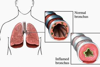Triệu chứng, dấu hiệu nhận biết bệnh hen phế quản 1