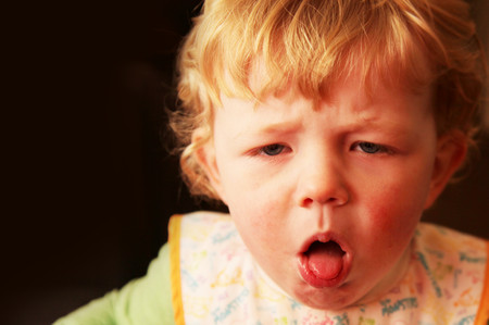 Trẻ bị viêm mũi họng cấp tính, điều trị như thế nào?