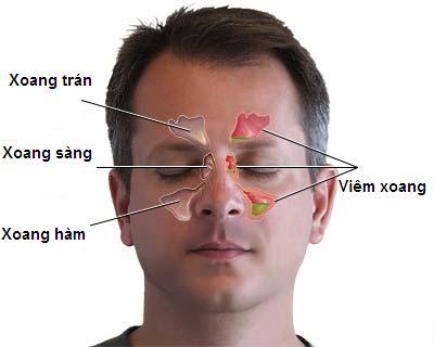 Bệnh viêm xoang hàm - Dấu hiệu nhận biết và hướng điều trị 1