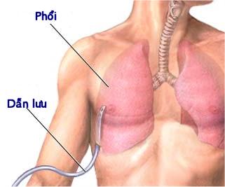 Các xét nghiệm và chẩn đoán tăng áp động mạch phổi 1