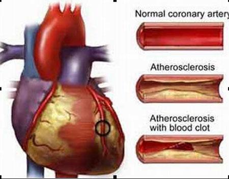 Xơ vữa động mạch và các biện pháp phòng ngừa 1