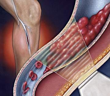 Xơ vữa động mạch chân 1