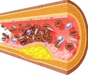 Xơ vữa động mạch cảnh 1