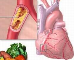 Cách nhận biết xơ vữa động mạch 1