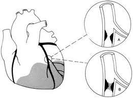 Quá trình hình thành của các mảng xơ vữa động mạch 1