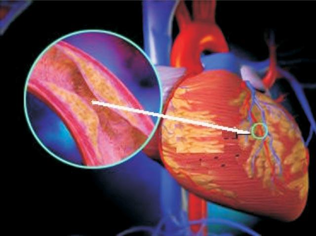 Triệu chứng nhận biết bệnh xơ vữa động mạch 1