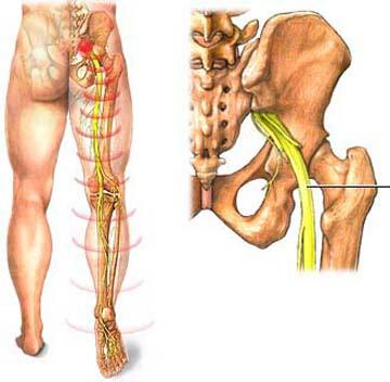 Lưu ý trong điều trị đau dây thần kinh hông