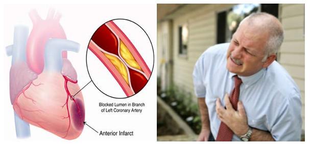 725257 Triệu chứng của nhồi máu cơ tim