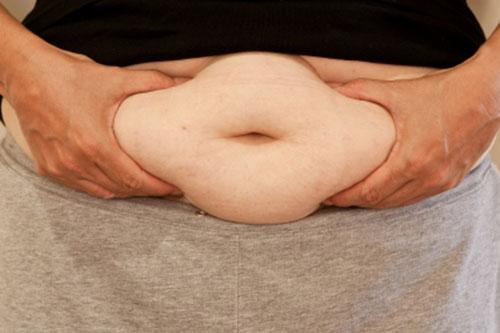 Hoạt động thể lực và chế độ vận động điều trị bệnh béo phì 1