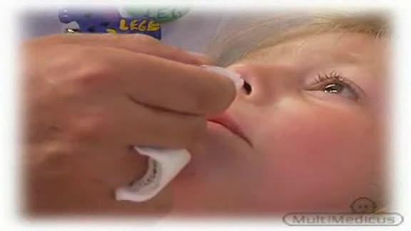 Nhỏ mũi 1