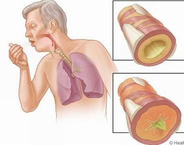 Chữa và điều trị bệnh hen phế quản (hen suyễn) 1
