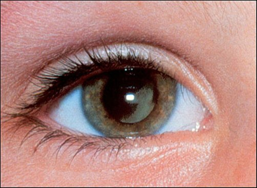 Coi chừng với các biến chứng ở mắt do viêm xoang 1