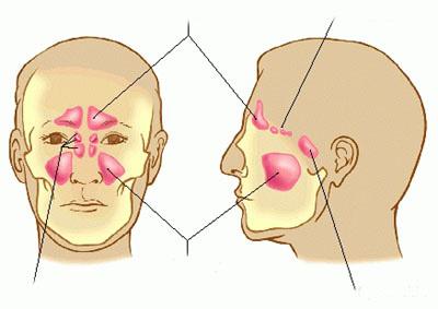 Vị trí xoang hàm liên quan mật thiết với xương hàm trên