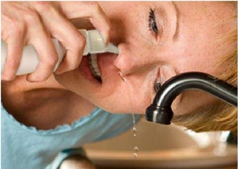 Người bệnh viêm xoang nên rửa mũi hàng ngày 4