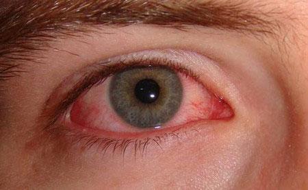 Các biến chứng viêm đa xoang có thể gặp nếu không được chữa trị kịp thời và đúng cách 1
