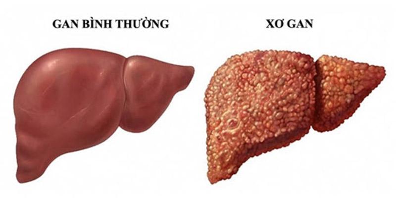 Xơ gan và tăng huyết áp tĩnh mạch cửa 1
